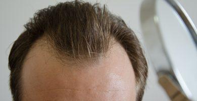 Cuando empieza a crecer pelo injerto capilar